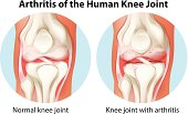 Arthritis of the human knee joint on a white background