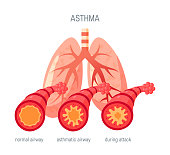 Asthma disease concept. Vector illustration in flat style for medical atlases, articles, infographics etc.