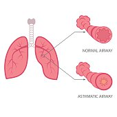 vector asthma illustration, bronchial, lungs respiratory disease,
