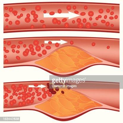 Atherosclerosis : Vector Art