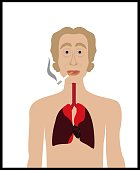 The illustration tells that smoking is life threatening and what could be because of this.