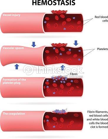 basic steps in hemostasis stock vector thinkstock