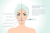 Before and after vector illustration of woman having hyaluronic acid facial injection. Vector infographics design template. Beauty, cosmetology, anti-aging concept.