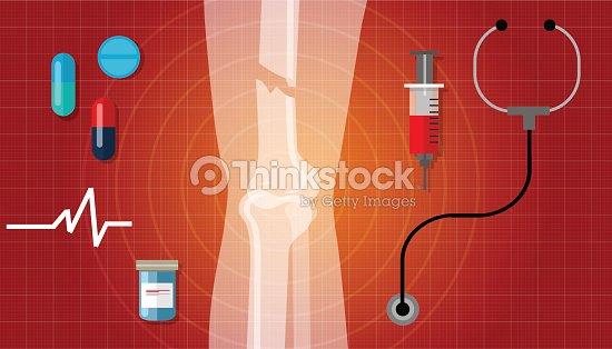 Knochenbruch Gebrochenen Bein Knochen Menschliche Anatomie Xray ...