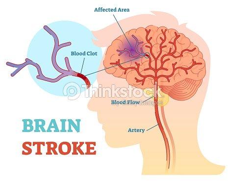 Cerebro Movimiento Anatómico Vector Ilustración Diagrama Esquema ...