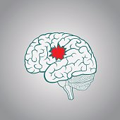 Serious illness and brain injury