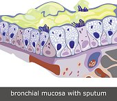 Structure of damaged bronchial mucosa with sputum, vector illustration