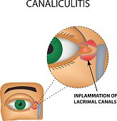 Canaliculitis. Inflammation of lacrimal canals. The structure of the eye. Infographics. Vector illustration on isolated background.
