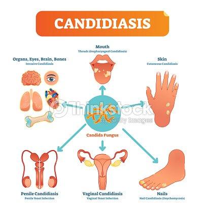 Cartel De Candidiasis Médica Vector Ilustración Diagrama Con Todos ...