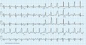 vector illustration looks like real cardio diagram