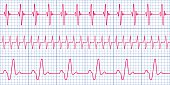 Seamless pattern of the ekg cardiograms chart