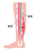 Cause of swelling(edema) of the legs. Decreased blood flow due to muscle weakness. flat illustration (Japanese).