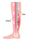 Cause of swelling(edema) of the legs. Decreased blood flow due to muscle weakness. flat illustration
