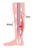 Cause of swelling(edema) of the legs. flat illustration of normal leg.