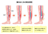 Cause of swelling(edema) of the legs. flat illustration (Japanese / with explanation text).