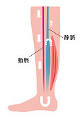 Cause of swelling(edema) of the legs. Water in the blood stagnates and venous pressure rises. flat illustration (Japanese)