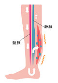 Cause of swelling(edema) of the legs. Water leaks from the veins and swelling occurs. flat illustration (Japanese)