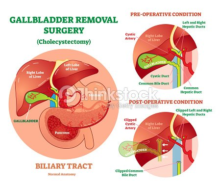 Cholecystectomy Gallbladder Removal Surgery Anatomical Vector ...