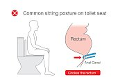 Common posture while sitting on toilet make discomfort at the rectum. Illustration about incorrect position in lifestyle.