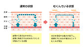 Comparison illustration of normal skin and swollen skin (Japanese/with explanation text)