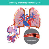 Condition of high blood pressure in the arteries that go from your heart to your lungs.