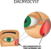 Dacryocyst. Inflammation of the lacrimal sac of the eye. The structure of the eye. Infographics. Vector illustration on isolated background.