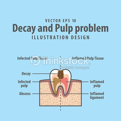 Decay And Pulp Problem Crosssection Structure Inside Tooth Diagram