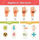 Degree of skin burns. Vector. Cartoon. Isolated. Flat. Illustration for websites brochures magazines