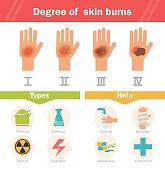 Degree of skin burns. Vector. Cartoon. Isolated. Flat. Illustration for websites brochures magazines