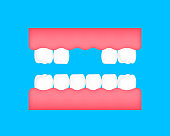 Dental care concept. Illustration isolated on blue background.