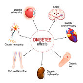 Diabetes Affects. Complications of diabetes mellitus: nephropathy, Diabetic foot, neuropathy, retinopathy, stroke; Reduced blood flow and cardiomyopathy. Vector diagram for educational, medical, biolo