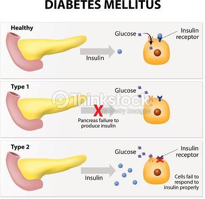 Diabetes Mellitus Arte vectorial | Thinkstock