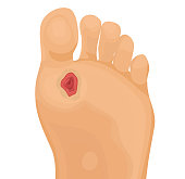 Diabetic ulcer on human foot vector illustration on white background