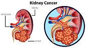 Diagram showing kidney cancer illustration