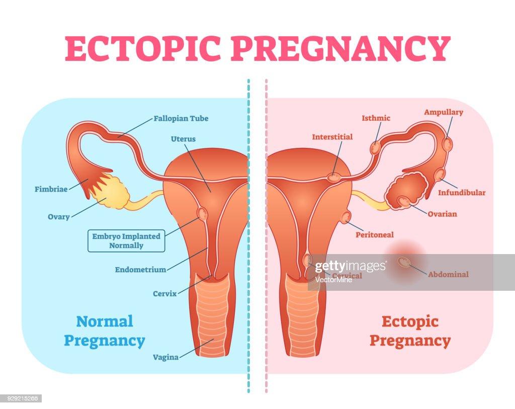 Human Body Organs Diagram Female Eptopic Pregnancy - Wiring Diagram ...