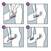 Illustration of a tampon inserted into the vagina to prevent menstrual fluid leakage.