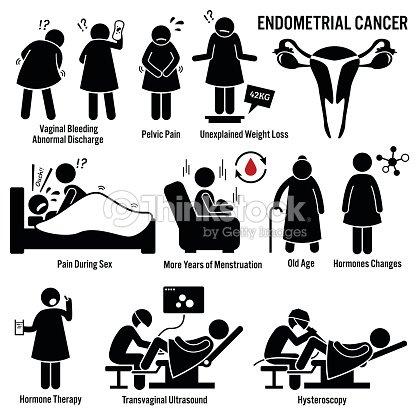 endom triale cancer illustrations clipart vectoriel thinkstock. Black Bedroom Furniture Sets. Home Design Ideas