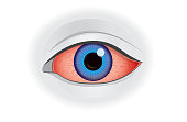 Eye redness symptom of human isolated on white. Illustration about health problem.