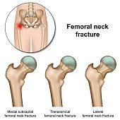 Femoral neck fractures medical vector illustration on white background eps 10