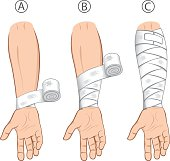 Illustration first aid forearm caucasiaon, educational simple dressing. Ideal for medical catalogs, informational and institutional material