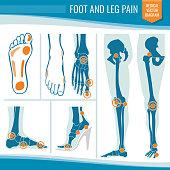 Foot and leg pain. Arthritis and rheumatism orthopedic medical vector diagram. Illustration of rheumatism leg joint