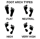Vector art: types of foot arch.