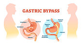Gastric bypass medical surgery procedure vector illustration with esophagus, stomach, duodenum and jejunum flow. Anatomical diagram with normal stomach and bypassed.