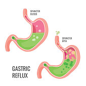 Gastric reflux medical promo poster with human organ. Closed and open sphincter. Body malfunction visualization isolated cartoon flat vector illustration.
