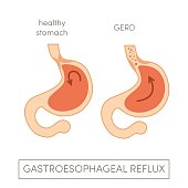 Gastroesophageal reflux disease. Vector heartburn concept in simple flat style