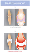 The illustrated a form of arthritis which can be intensely painful it's caused by having sodium urate crystals in a joints your fingers hand or toes. health care infographic.