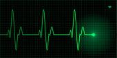 Green heart pulse illustration on black background, electrocardiogram. Vector illustration with transparent effect, eps10.