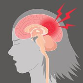 headache, cerebral hemorrhage, brain stroke, image illustration