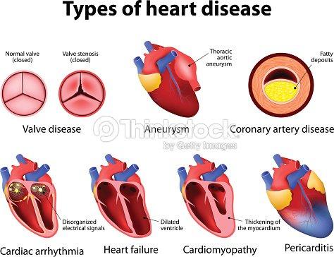 Heart disease vector art thinkstock heart disease ccuart Choice Image