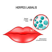 Herpes labialis (blisters) on the lip. cause is herpes simplex virus (under a magnifying glass). Vector diagram for medical use
